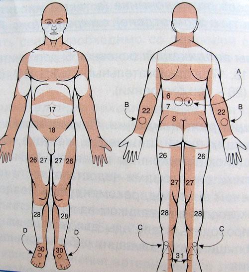 Астма признаки и симптомы у взрослых лечение