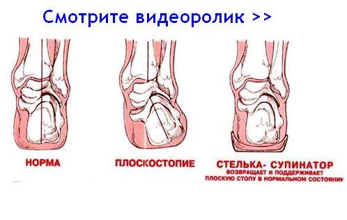 Видео о прблемах стоп и свойствах супинаторов Быкова
